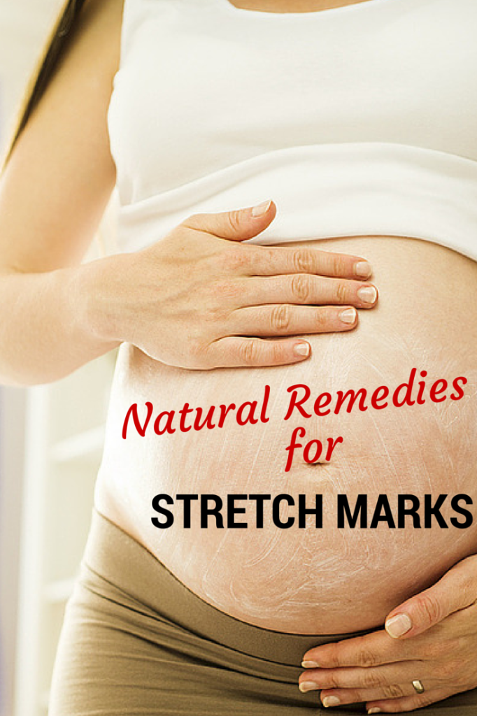 Natural remedies stretch marks